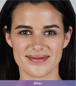 JUVÉDERM VOLLURE™ before-and-after photos. Photo taken before treatment and one month after treatment. Actual patient. Individual results may vary.